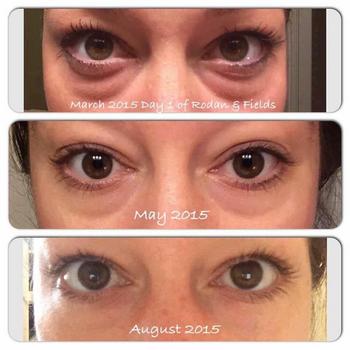 Win A Rodan And Fields Multi Function Eye Cream